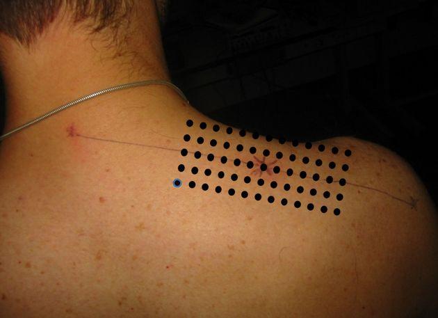 Electrode positioning